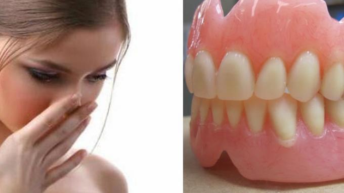 Mitos atau Fakta, Gigi Palsu Dapat Menyebabkan Bau Mulut? Begini Penjelasan Dokter